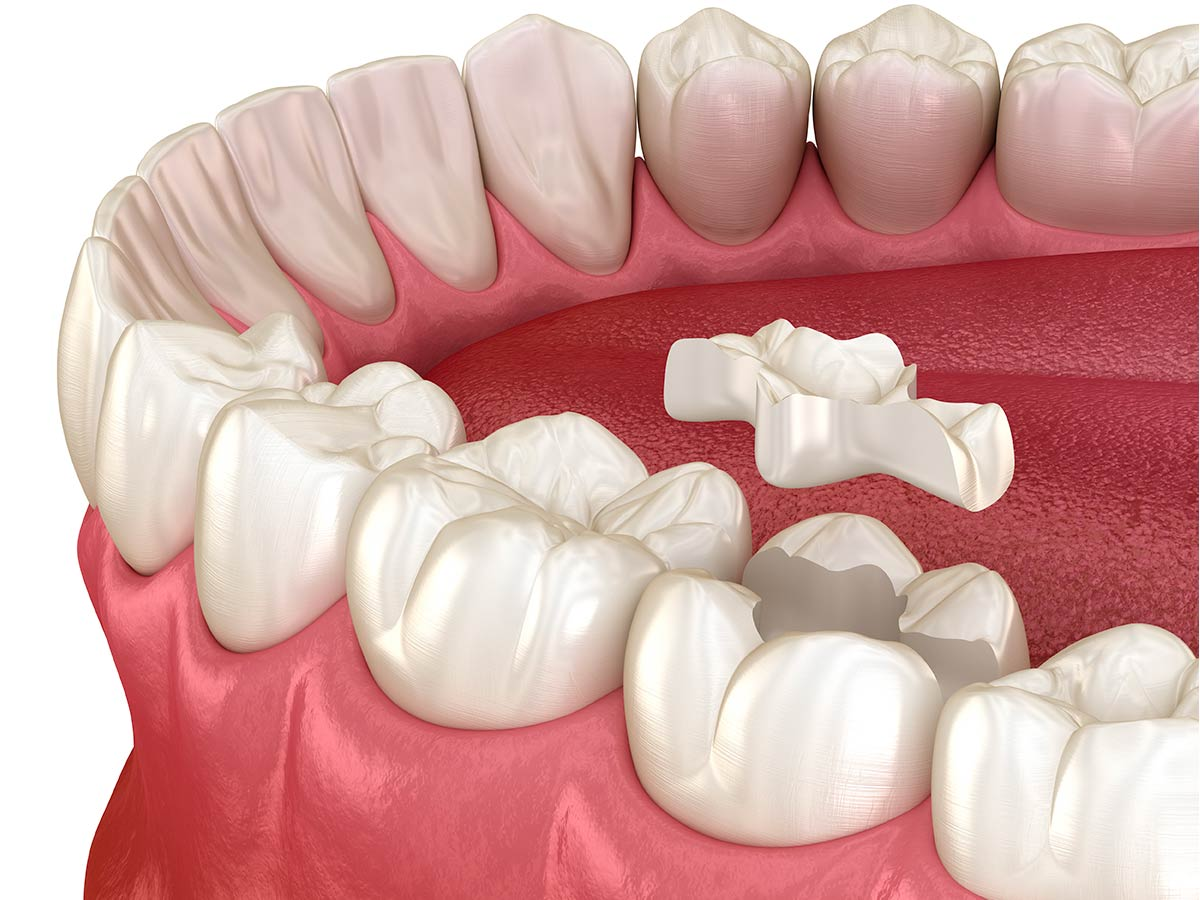 cosmetic-dentistry-porcelain-onlay